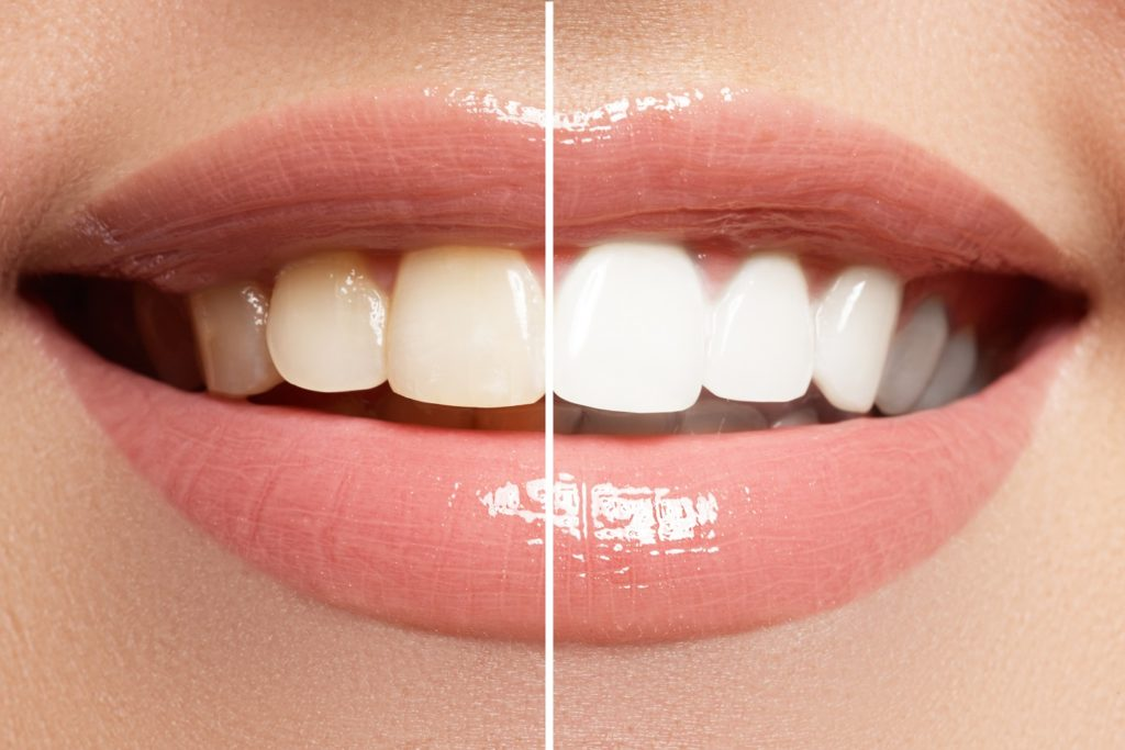 a smiling mouth with teeth shown half stained and half bright white