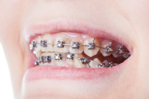 Braces need care to keep from being damaged