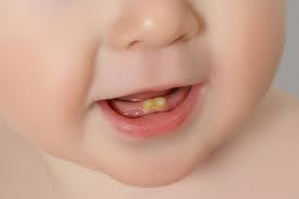 Avoid Baby Bottle Tooth Decay