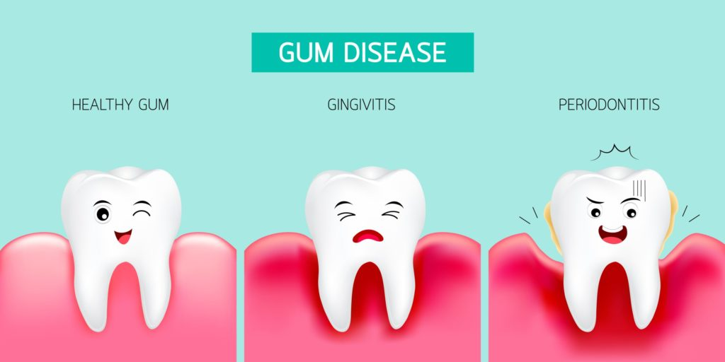 clipart stages of gum disease