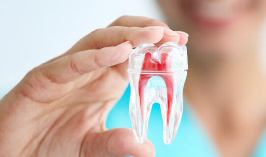 root_canals_image